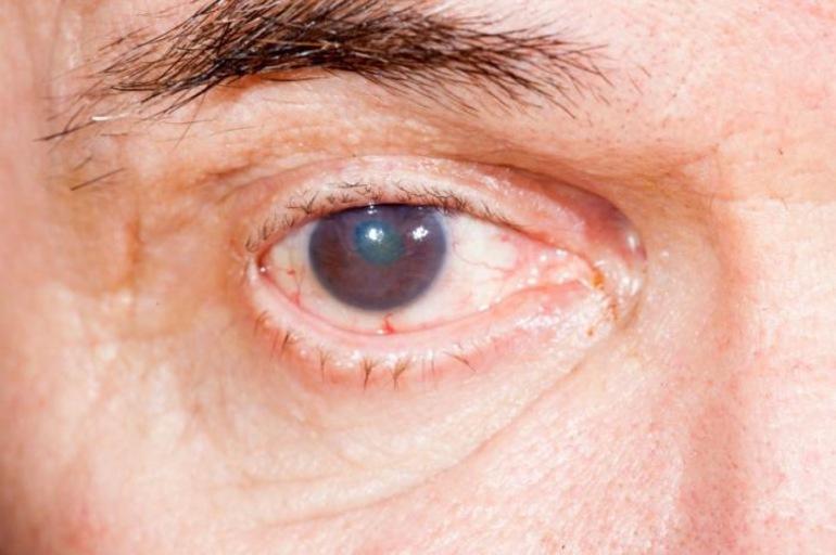 Признаки глаукомы у взрослых, детей и младенцев
