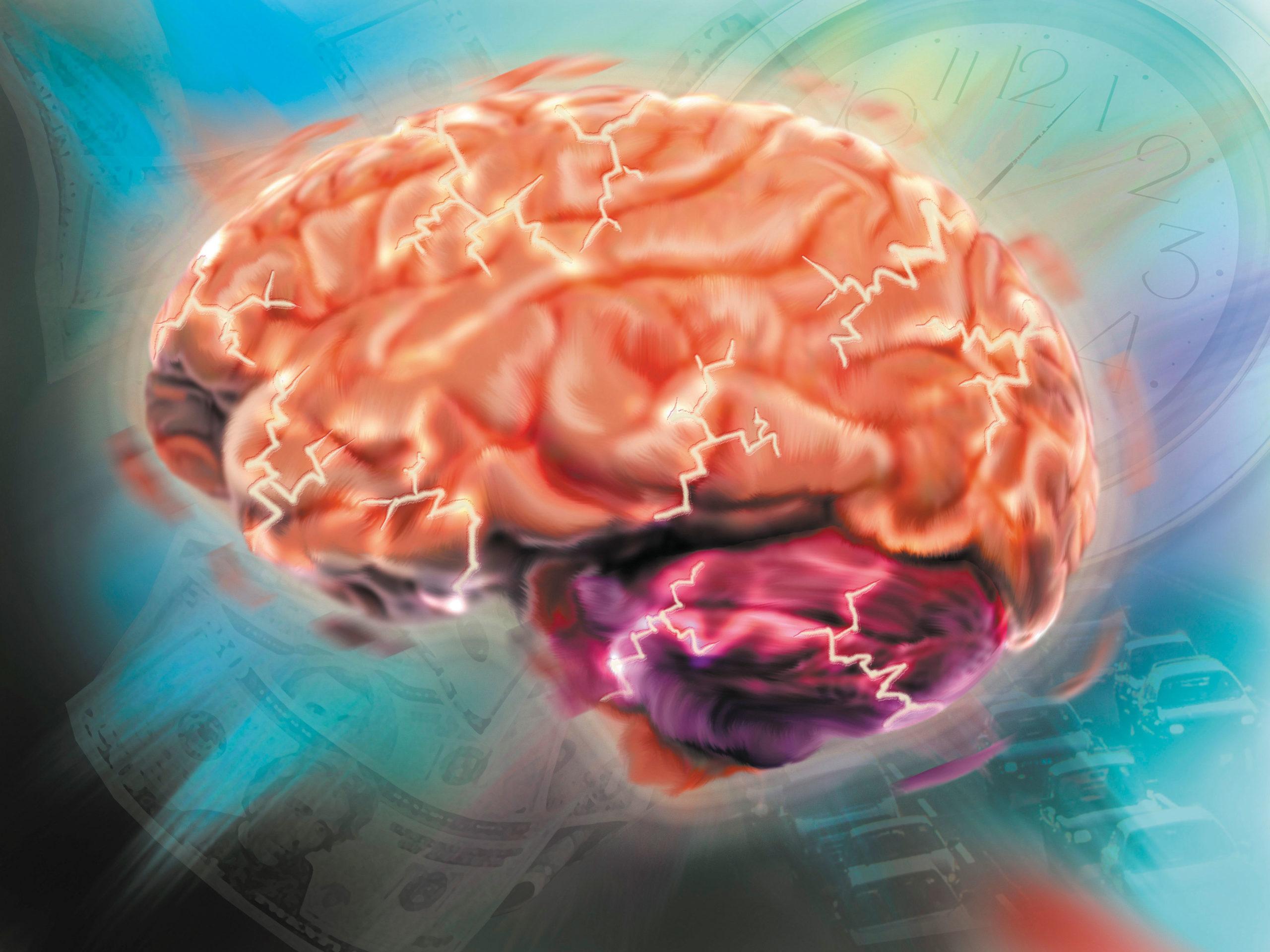 Препараты при ишемии головного мозга отзывы - Медицинский ...