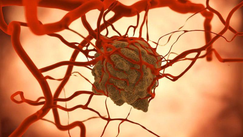 Характеристики доброкачественных и злокачественных опухолей