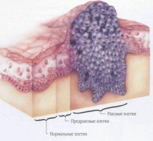 Лейкоплакия полости рта и риск рака