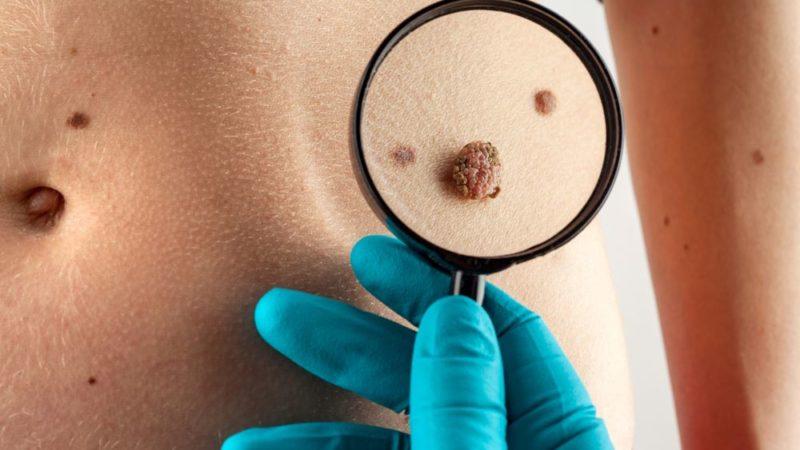 Рак кожи причины и лечение
