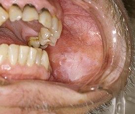 Снимки оральной лейкоплакии