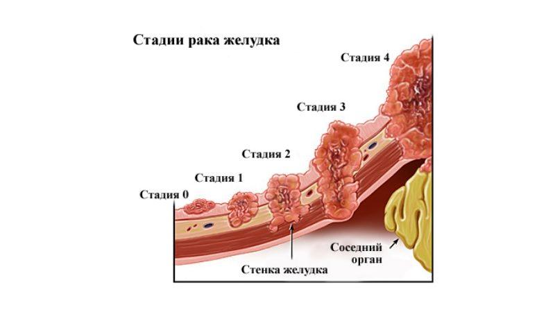 Стадии рака TNM