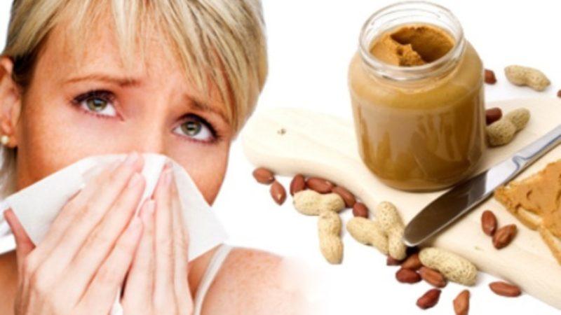 Пищевая аллергия у детей и взрослых причины