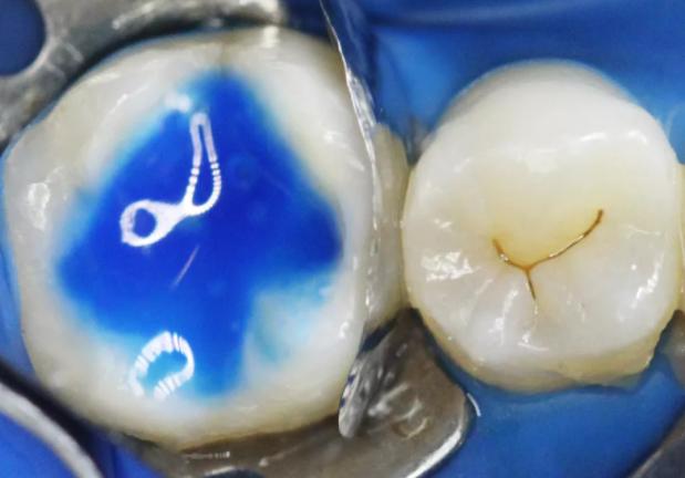Кариес в полости зуба причины и лечение