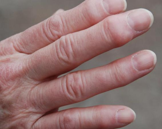 Причины и лечение псориатического артрита