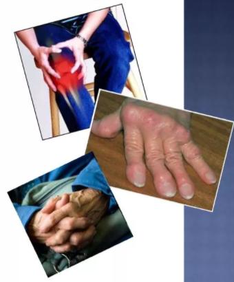 Раннее симптомы ревматоидного артрита