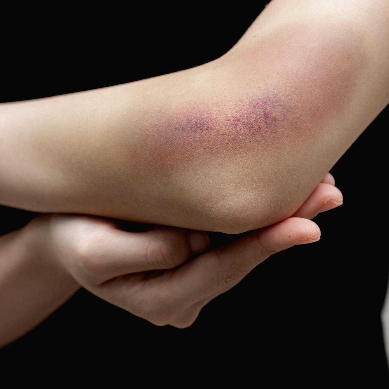 Повреждение мягких тканей