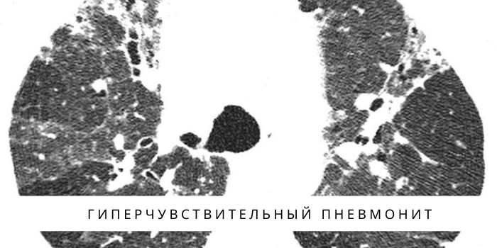 Гиперчувствительный пневмонит