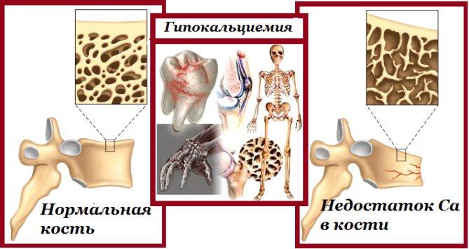 Гипокальциемия