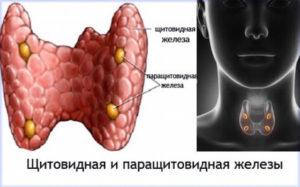Заболевания паращитовидной железы