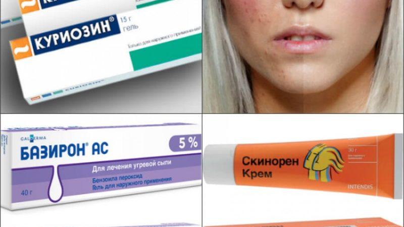Средство прыщей на лице в аптеке качественные