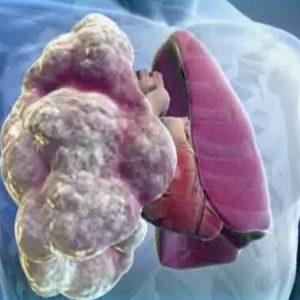 Экзогенный аллергический альвеолит