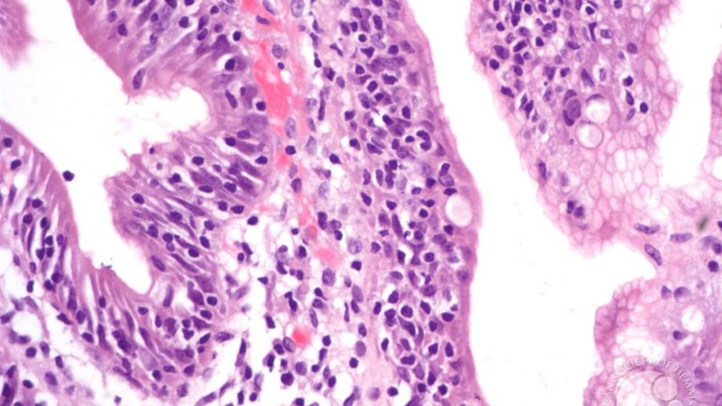 Энтеропатия с потерей белка
