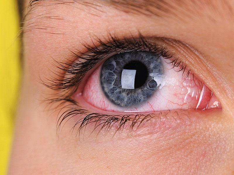 Сухость глаз причины и лечение