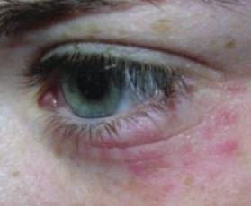 Сыпь вокруг глаз причины