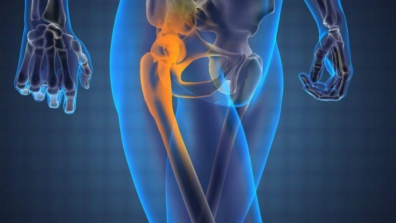 Заболевания тазобедренного сустава