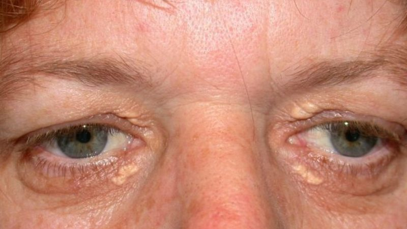 Холестерин на глазах и под глазами