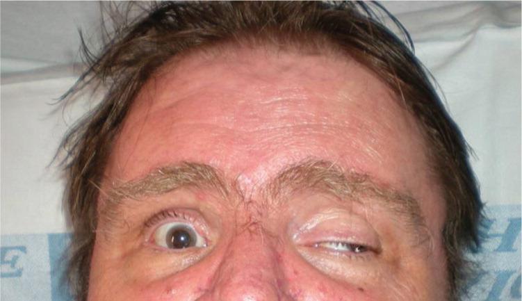 Диплопия глаза причины