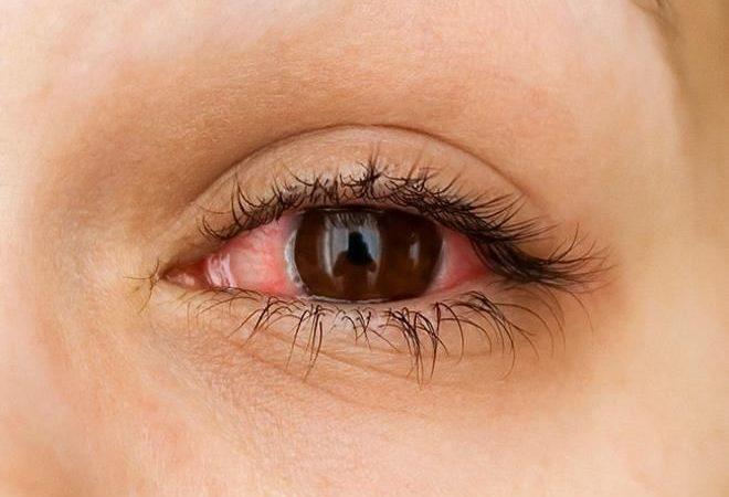 Очень сильно покраснели глаза
