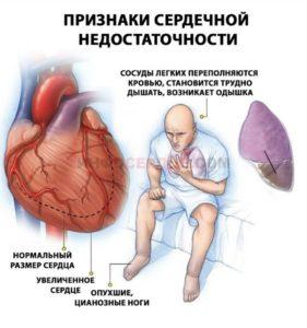 Причины сердечных симптомо