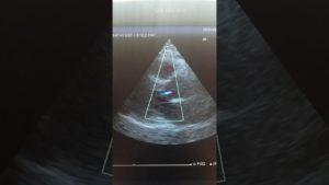 Что происходит при аортальной регургитации