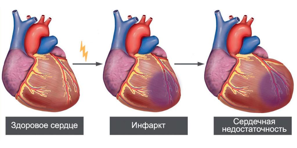 Что происходит с сердцем при инфаркте миокарда