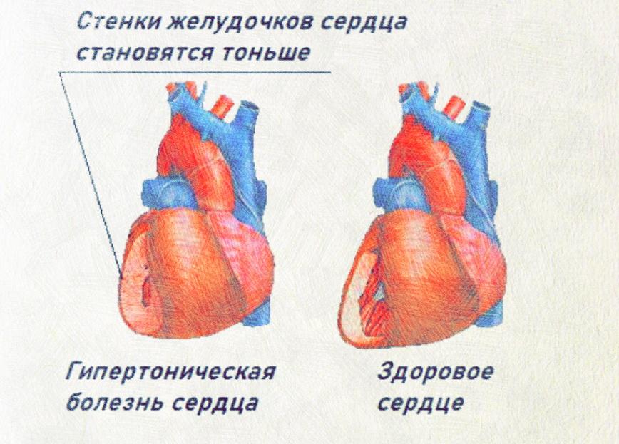 Гипертоническая болезнь сердца что это