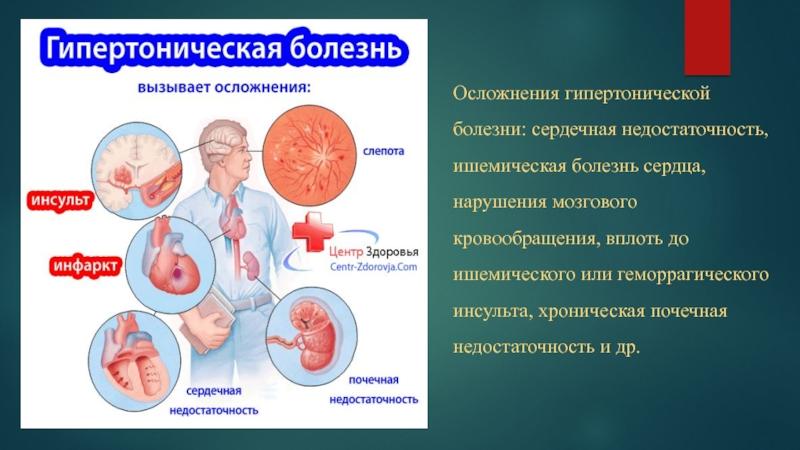 Гипертоническая болезнь сердца осложнения