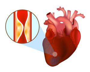 Инфаркт миокарда причины