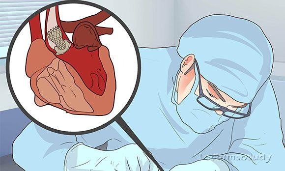 Кальцификация аортального и митрального клапана