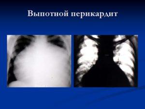 Перикардиоскопия