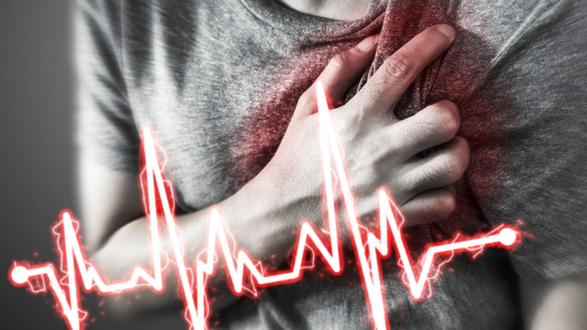 Внезапная сердечная смерть