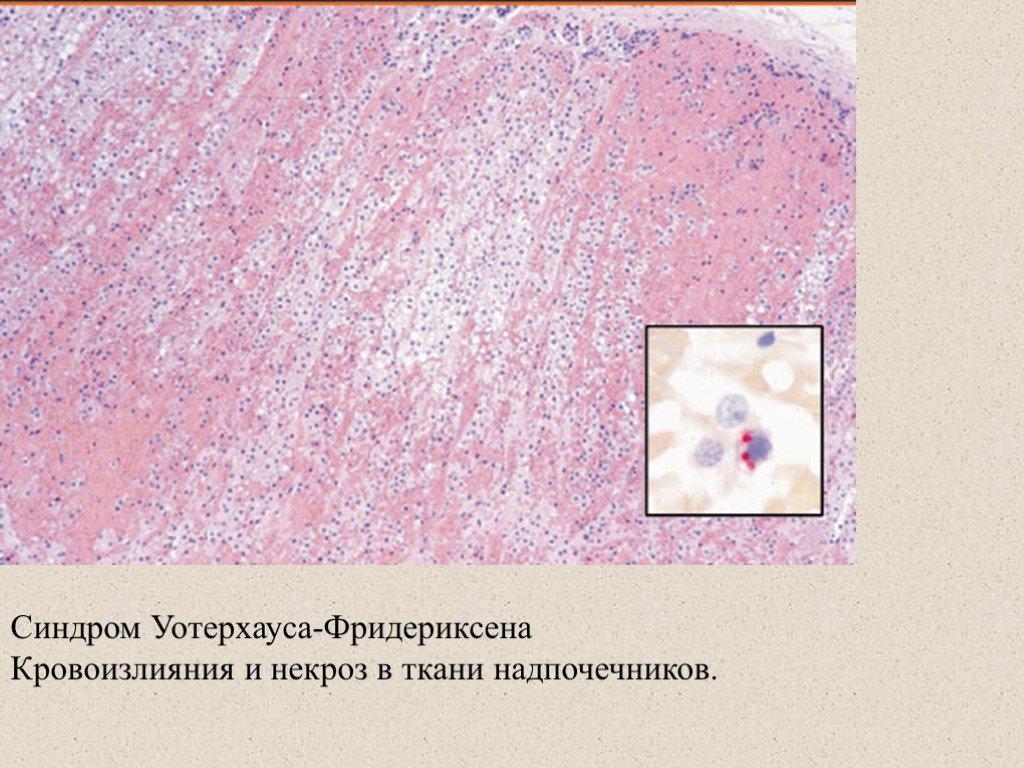 Причины кровоизлияния в надпочечники