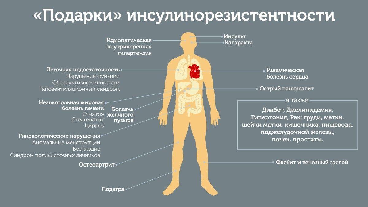 Симптомы инсулинорезистентности какие