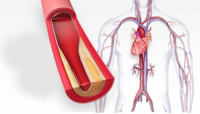Закупорка артерии