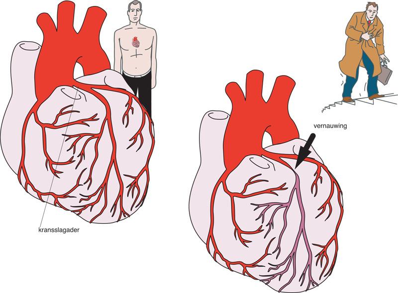 Типы стенокардии и симптомы