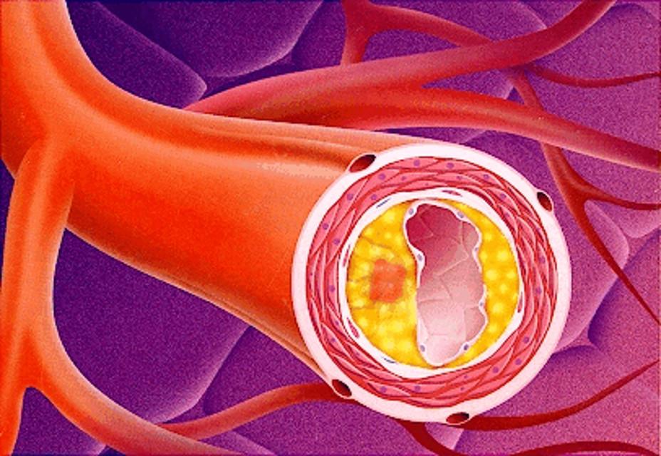 Причины утолщения стенок вен и артерий