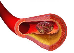 артерия утолщение