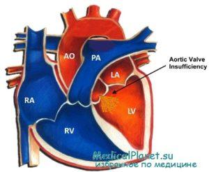 при аортальной регургитации