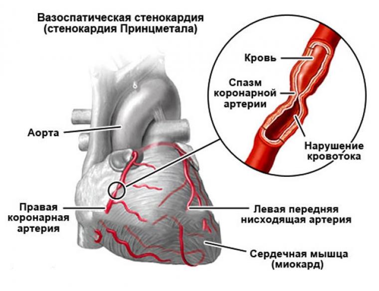 стенокардии Принцметала