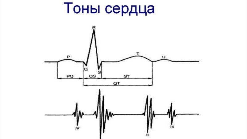 Что такое тоны сердца