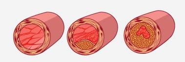 утолщаются кровеносные сосуды
