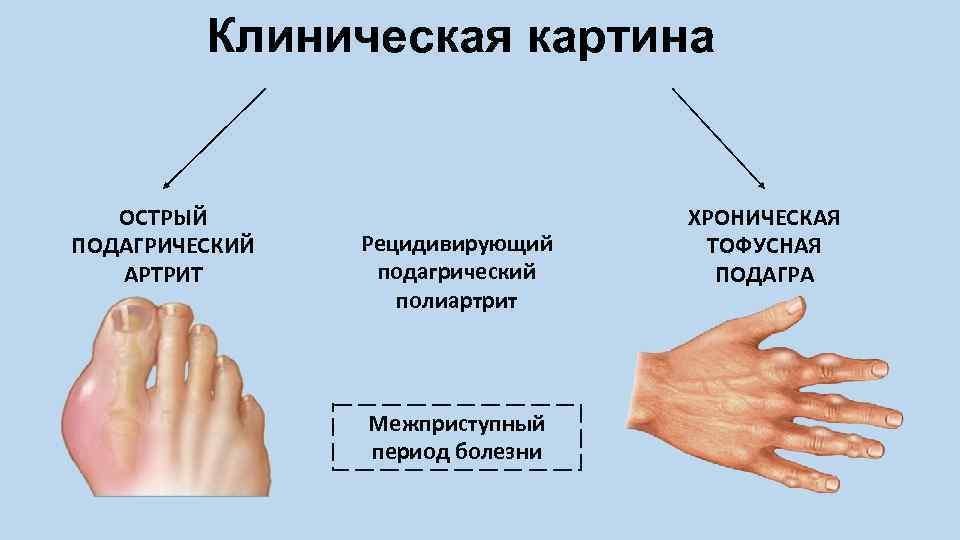 повреждение сустава между приступами подагры